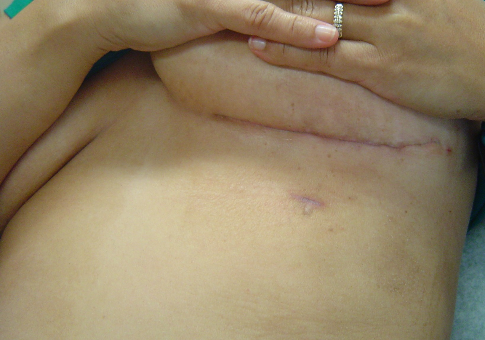 a woman's chest post open heart bypass surgery